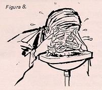 La psoriasis a los hombres sobre el órgano genital